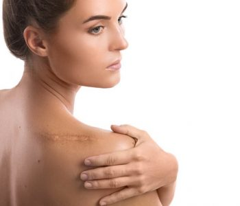 Tips for Preventing and Reducing Scars