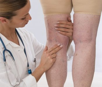 How To Care For Varicose Veins and Improve Your Vascular Health